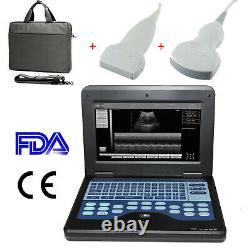 10.1 FDA CE Human Laptop Ultrasound Scanner B-Ultrasound Convex+Linear, US FEDEX