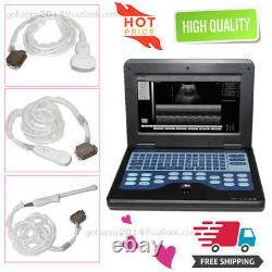 3 probes Digital Portable Laptop Ultrasound Scanner+convex+cardiac+transvaginal