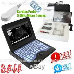 CE Full Digital Laptop Ultrasound Scanner Diagnostic Sytems + Micro Convex Probe