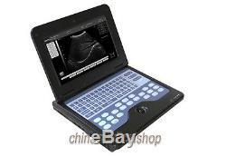 CE Full Digital Ultrasound scanner diagnostic system machine 3.5M convex probe