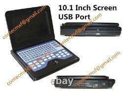 CE New Digital Ultrasound Scanner Laptop Machine+Transvaginal+Convex 2 Probes