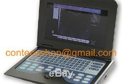 CE Portable Laptop Machine Digital Ultrasound Scanner, 3.5M Convex Probe Abdomen