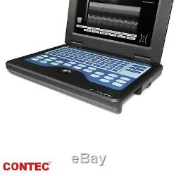 CE Portable Ultrasound Scanner Laptop Machine 3.5 Convex probe, Optional linear