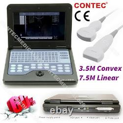 CMS600P2 Digital Laptop Scanner Machine Ultrasound Diagnostic 2 Probes
