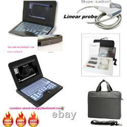CMS600P2 Digital Portable laptop machine ultrasound scanner 7.5mhz linear probe
