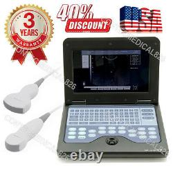 CMS600P2 Digital Ultrasound Scanner Machine with 3.5Mhz CONVEX+5.0M Micro Convex