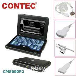 CMS600P2 Full Digital Portable Laptop Ultrasound Scanner Machine 2 Probes CE FDA