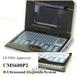CMS600P2 Portable Laptop Ultrasound Scanner Machine+ 2 Probes, Diagnostic System