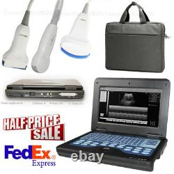 CMS600P2 Ultrasound Scanner Digital Laptop Machine with 3 Probes LCD 10.1 Inch