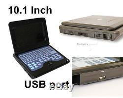 CONTEC Portable CMS600P2 Laptop Ultrasound Scanner Machine 3.5m Convex Probe USA