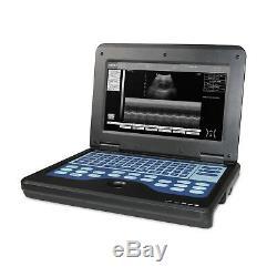 CONTEC Portable Laptop Machine Digital Ultrasound Scanner, 3.5M Convex probe USA