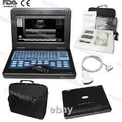 CONTEC Portable Ultrasound Scanner 3.5Mhz Convex Probe Digital Laptop Machine, CE