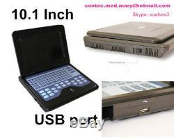 CONTEC Portable ultrasound scanner laptop machine Convex/Linear/Cardiac 3 Probes