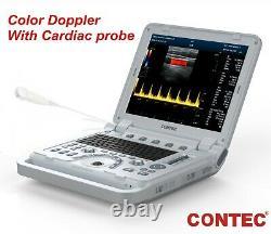 Cardiac Color Doppler Ultrasound Scanner Laptop Machine Micro-Convex Heart Exam