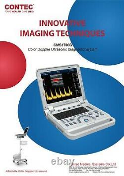 Color Doppler Ultrasound Scanner Cardiac Machine + Phased Array Probe Heart Exam