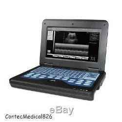 Contec, CMS600P2 Ultrasound Scanner Laptop Machine 3.5Mhz Convex Probe, USA Fedex