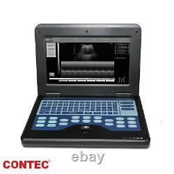 Digital B-Ultrasound Scanner Portable Machine +Convex Abdominal Ultrasound Probe