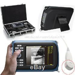 Digital Handheld Palmtop Ultrasound Scanner/Machine Cardiac Micro-Convex ProbeAA
