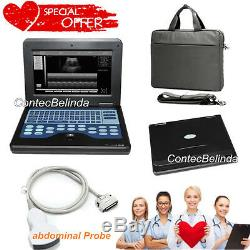 Digital Laptop/portable notebook B-Ultrasound Scanner System+abdominal Convex