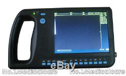 Digital Palmsmart Ultrasound Scanner Handheld Abdominal System, 3.5 Convex Probe