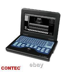 Digital Portable Laptop Ultrasound Scanner Machine 3.5mhz Convex + Cardiac Probe