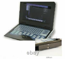 Digital Portable Ultrasound Machine Laptop Scanner with 2 ProbesConvex+Rectal