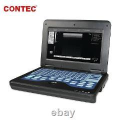 Digital Veterinary Ultrasound Scanner Portable Laptop Machine 7.5M Rectal Probe
