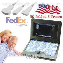 Digital ultrasound scanner Portable laptop machine+3 probe Convex/Linear/Cardiac