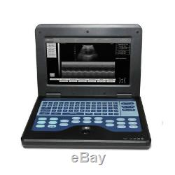 FDA, CE CONTEC Portable Ultrasound Scanner Laptop Machine, 7.5MHz Linear Probe, NEW