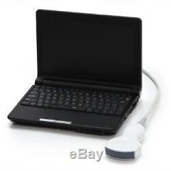 Handheld Digital Laptop Machine Portable Ultrasound Scanner 3.5MHz Convex probe