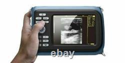 Handheld Ultrasound Scanner Digital Machine +Convex/Abdominal Probe & Box