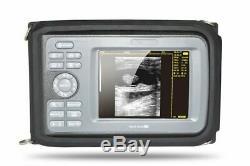 Handheld Ultrasound Scanner Digital Machine +Convex/Abdominal Probe & Box &Gift