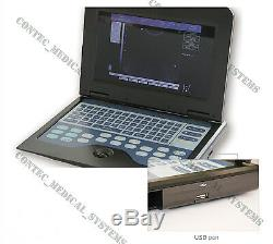 New Digital Portable Laptop Ultrasound Scanner Machine with 7.5MHz Linear probe