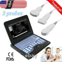 New Portable Ultrasound Scanner Machine 3 probes Convex+Linear+Cardiac, US Seller
