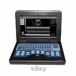 Portable Digital Ultrasound machine Scanner system CMS600P2+6.5 Mhz transvaginal