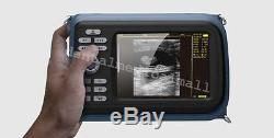 Portable Handheld full Digital Ultrasound Scanner Machine linear Probe HUMAN bid