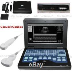 Portable Laptop Machine Digital Ultrasound Scanner, 3.5M Convex+Cardiac 2 Probes