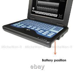 Portable Laptop Machine Digital Ultrasound Scanner 3.5Mhz Convex Probe CE