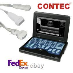 Portable Laptop Machine Digital Ultrasound Scanner, Convex+Linear+Cardiac Probes