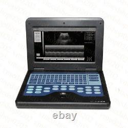 Portable Laptop Machine Digital Ultrasound Scanner, Linear+Convex 2 Probes, CONTEC