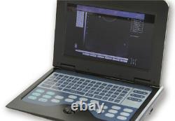 Portable Laptop Ultrasound Scanner Machine Digital Human Use 3.5Mhz Convex Probe