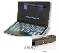 Portable Laptop machine Digital Ultrasound scanner + 3.5 Convex probe, For Human