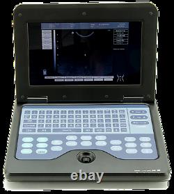 Portable Notebook Laptop Ultrasound machine Scanner, 3.5MHZ CONVEX probe, cart