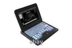 Portable Ultrasound Scanner Diagnostic Ultrasound Machine Convex+Transvaginal US