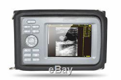 Portable Ultrasound Scanner Digital Convex/Abdomen Probe Human 3D Machine US