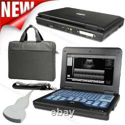Portable Ultrasound Scanner Laptop Machine 3.5Mhz Convex Probe Scanner System, CE
