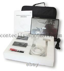 Portable laptop machine, Digital Ultrasound scanner, 3.5 Convex probe, US FedEx, Bag
