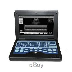 USA LCD Laptop Ultrasound Scanner Machine 3.5Mhz Convex +7.5Mhz Linear 2 Probes