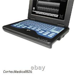 USA LCD Portable Ultrasound Scanner Laptop Machine with 3.5Mhz Convex Probe, Hot