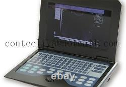USA Stock! CMS600P2 Laptop Ultrasound Scanner Machine 7.5Mhz linear For Human, FDA